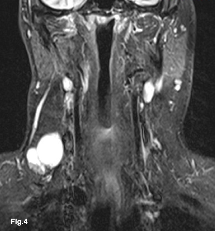 Cystic lesions of the neck: an important reminder to consider malignant pathology in adult patients</br> [Apr 2018]