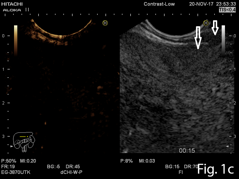 Large pedunculated lipoma of the esophagus: a case report </br> [Mar 2019]