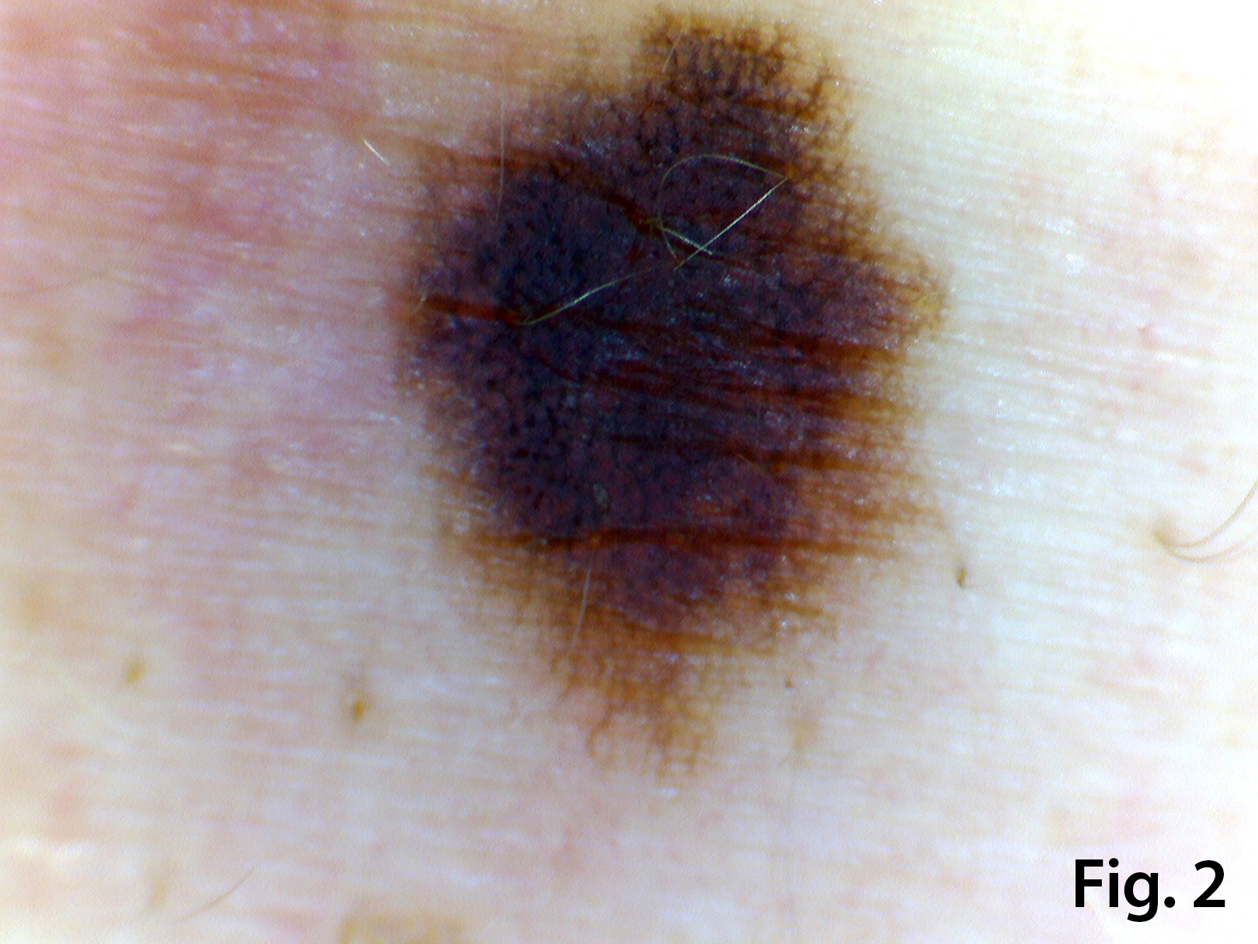 A rare case of a co-located pigmented naevus and dermal cyst: The utility of very high frequency Ultrasound and Videodermoscopy for differentiation </br> [Nov 2018]