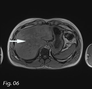 Unexpected finding of large, multifocal focal fatty infiltration of the liver in a patient with hypothyroidism and coeliac disease </br> [Jun 2019]