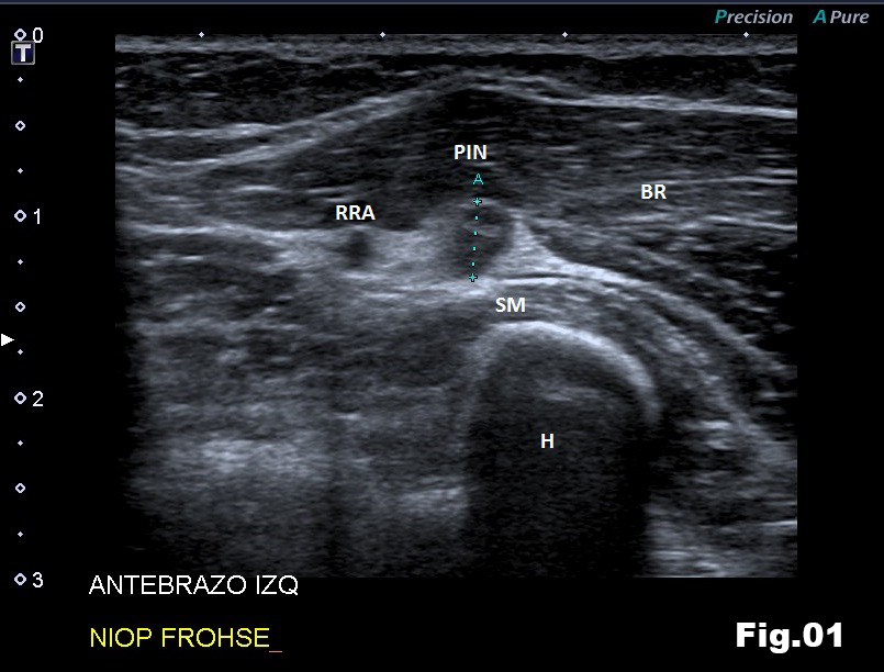 Posterior Interosseous Nerve syndrome caused by a Radial Osteochondroma</br> [Feb 2018]