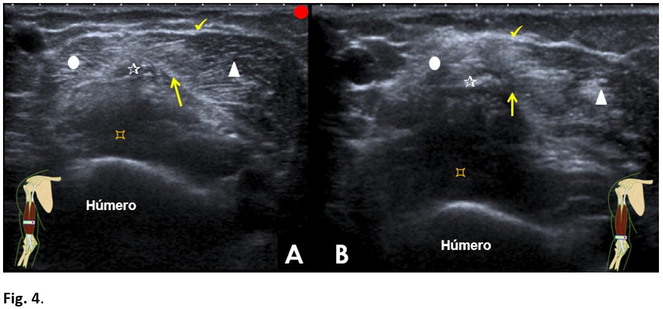 Myotendinous rupture of the distal biceps</br> [Jun 2018]