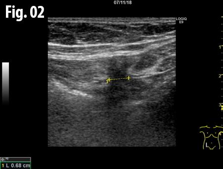 Spigelian hernia </br> [Apr 2019]
