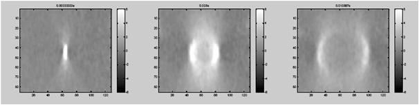 Supersonic Shear Imaging ShearWave Elastography</br> [Dec 2016]