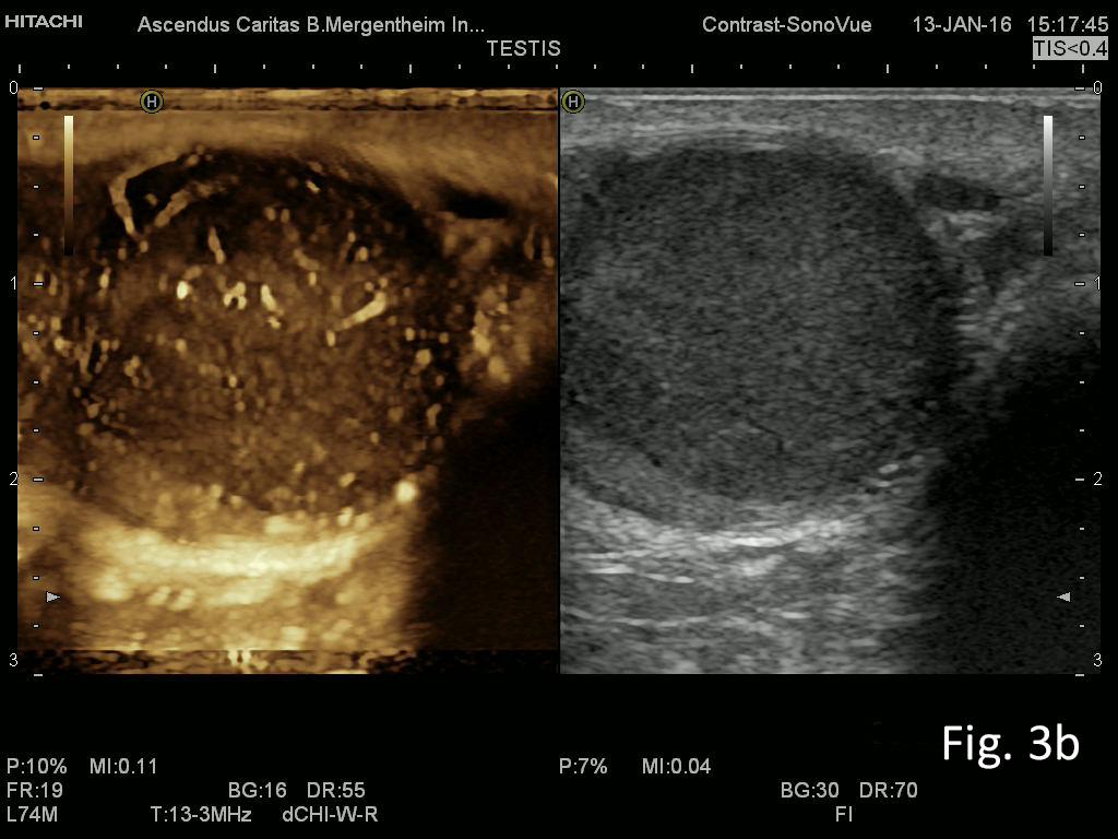 Abdominal (retroperitoneal) lymphadenopathy</br> [Oct 2016]