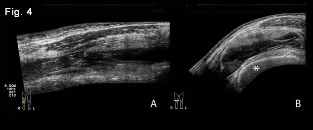 Bilateral quadriceps muscles and suprapatellar recesses injuries: ultrasound evaluation [Sep 2016]