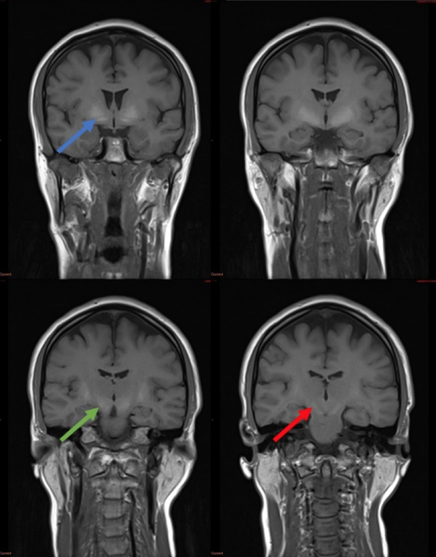 Congenital porto-systemic shunt as a cause of elevated manganese in adults </br> [Oct/Nov 2020]