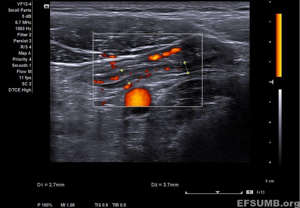 Ulcerative colitis [1 image]